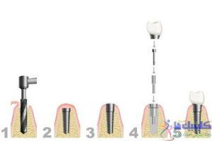 مراحل ایمپلنت ددان