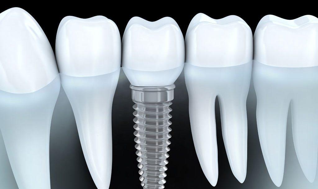 همه چیز درباره مزایا و معایب ایمپلنت دندان