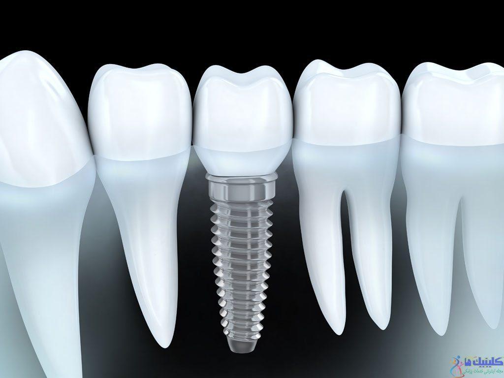 مزایای کاشت دندان با ایمپلنت چیست؟