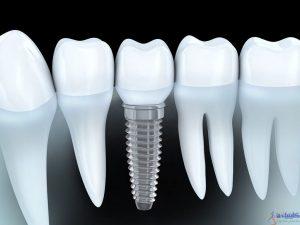مزایای کاشت دندان با ایمپلنت دندانی