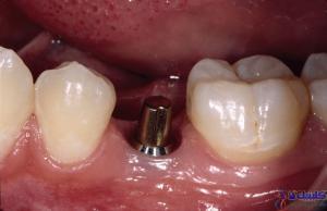 پایه ایمپلنت دندان
