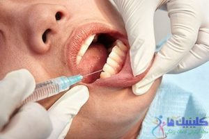 پیرا دندانپزشکی
