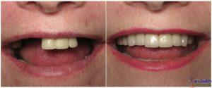 کاربرد ایمپلنت دندانی برای جایگزین کردن دندان افتاده