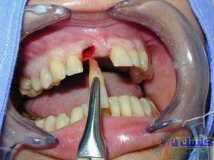 کشیدن دندان بدون درد با روش آتروماتیک