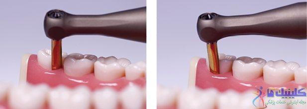 کشیدن دندان به روش آتروماتیک