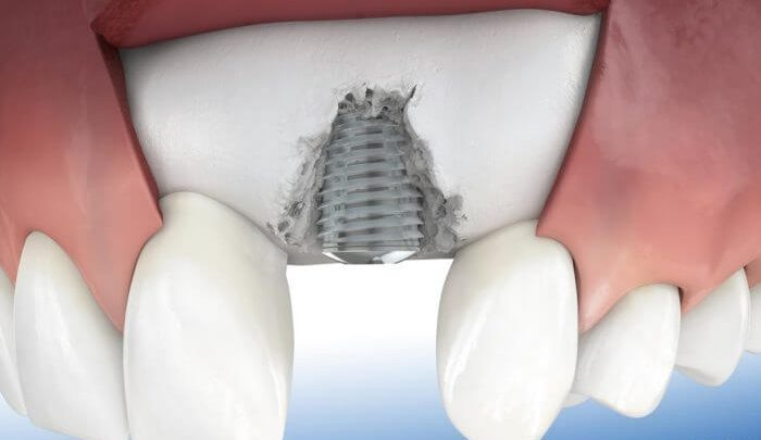 پیوند استخوان فک برای ایمپلنت دندانی