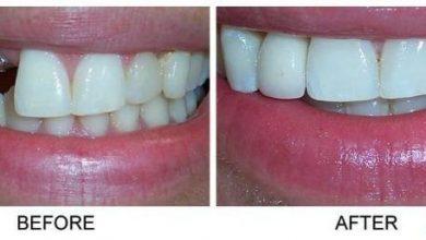 ایمپلنت فوری دندان و ایمپلنت دندان معمولی یک روش سریع برای جایگزینی دندان از دست رفته یا کشیده شده