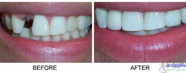 ایمپلنت فوری دندان یک روش سریع برای جایگزینی دندان از دست رفته یا کشیده شده