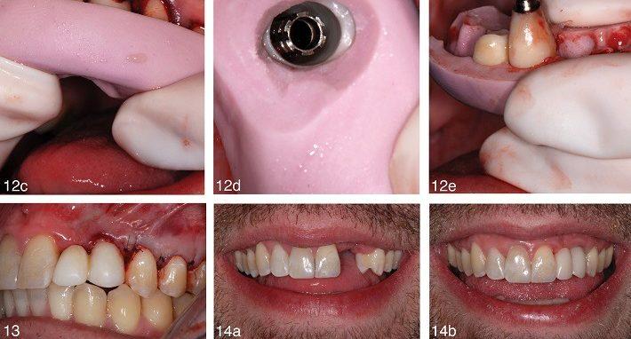 مراحل کاشت یا ایمپلنت دندان