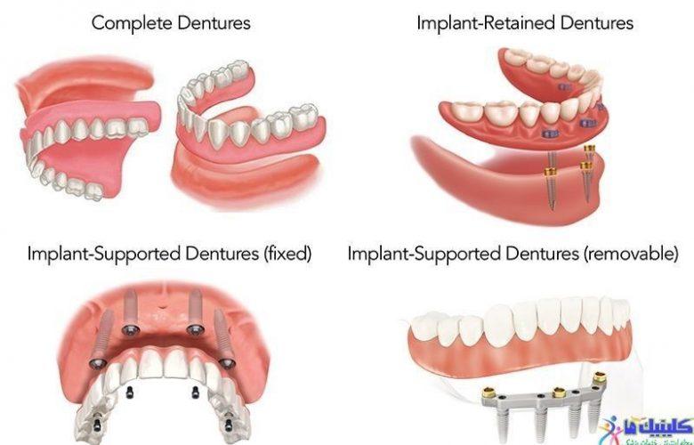 کاشت دندان مصنوعی و درست کردن مشکل شل شدن آن با ایمپلنت دندانی