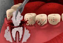 تصویر پیوند استخوان برای ایمپلنت دندان چه موقع لازمه؟ انواع پیوند، مزایا و معایب