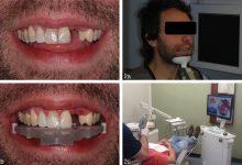روش ایمپلنت دندان فوری با روش پانچ و دیجیتال چه مزایا و مشکلاتی دارد؟