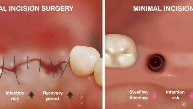ایمپلنت دندان بدون جراحی با روش فلب لس پانچ