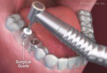 تصویر ايمپلنت بدون جراحی با پانچ و بخیه بهترین جایگزین یک تا چند دندان کشیده