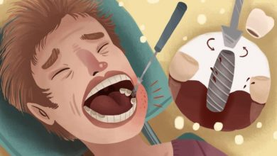 Photo of کاهش درد ایمپلنت دندان با چه روش هایی امکان پذیر است؟
