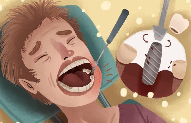کاهش درد ایمپلنت دندان با چه روش هایی امکان پذیر است؟