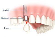 کاشت دندان ایمپلنت با روش پانچ بدون جراحی