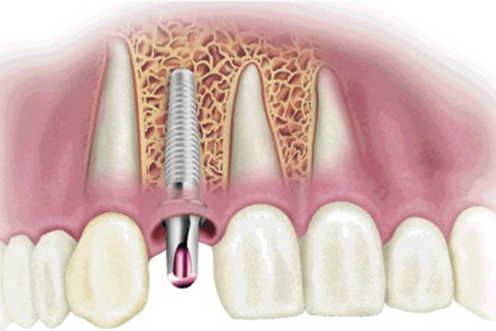 ايمپلنت دندان بدون جراحی بهترین جایگزین یک یا چند دندان کشیده و دندان مصنوعی