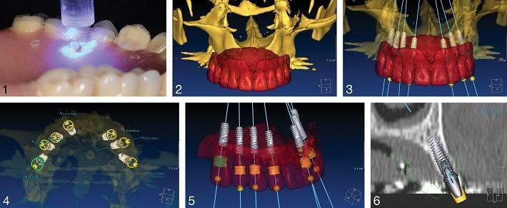 ایمپلنت فوری دندان دیجیتال در دو جلسه: اثبات مفهوم