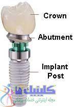 رابط ایمپلنت برای کاشت دندان
