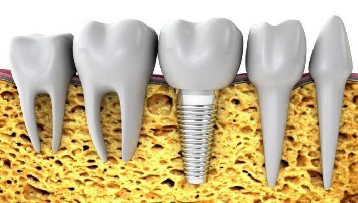 پیوند استخوانی ایمپلنت دندان