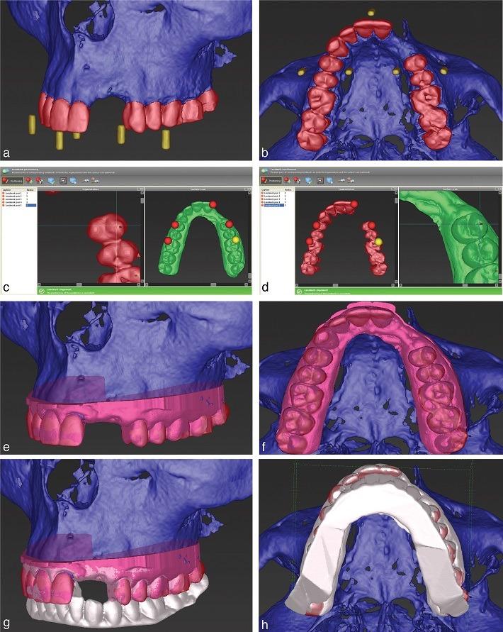 طرح دیجیتال برای کاشت ایمپلنت