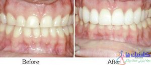 درست کردن مشکل لثه ها با لیزردرمانی دندانی