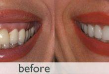 رفع لخند لثه ای جراحی لثه با لیزر