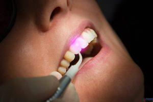 لیزردرمانی لثه دندانپزشکی درمان بیماری لثه