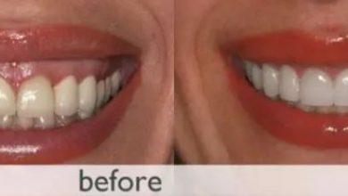 Photo of رفع لبخند لثهای با استفاده از لیزر درمانی بر روی لثهها و درمان مشکلات لثه
