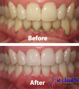 periodontal-before-after