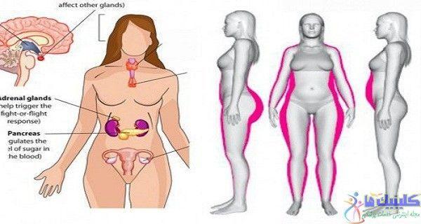 کاهش چربی دور کمر و باسن و شکم با طب سوزنی لیزری