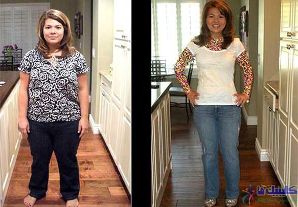 لاغری با طب سوزنی الکتریکی و کاهش سایز موضعی بدن در نواحی شکم و باسن