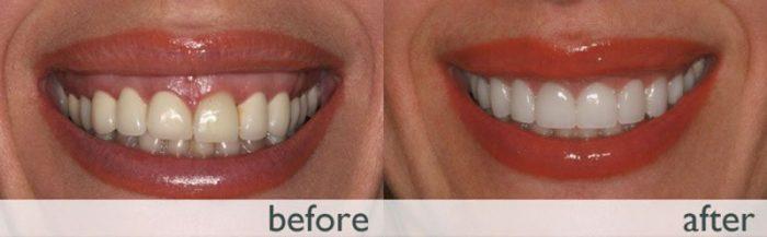 جراحی لثه با لیزر چطور انجام میگیرد و مزایای این روش نسبت به روش معمولی چیست؟