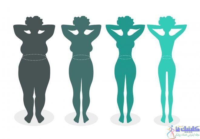 امبدینگ لاغری یا کاشت نخ لاغری برای چربی سوز بدن و کاهش اشتها