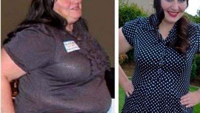 Photo of انتخاب لاغری با طب سوزنی لیزری و کاهش سایز دور کمر و باسن