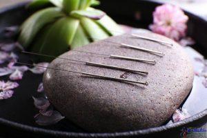 5-acupuncture