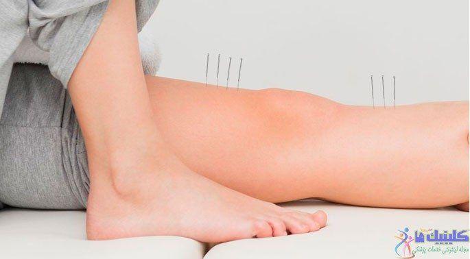 تصویر طب سوزنی پا برای درمان مشکلات و احساس ضعف در پا و اندام های تحتانی
