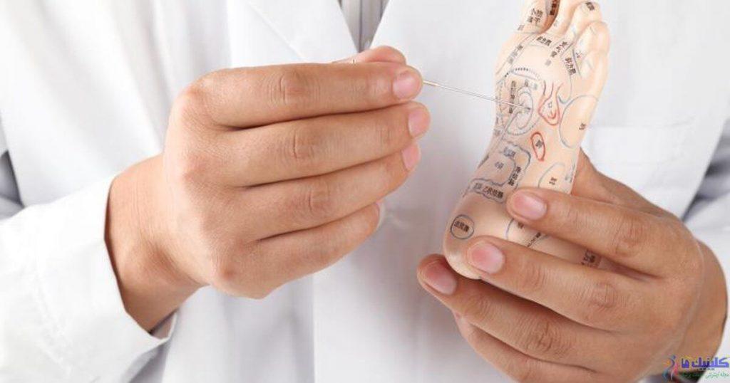 طب سوزنی پا برای درمان بیماری ها