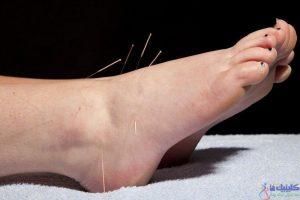 طب سوزنی پا برای درمان درد
