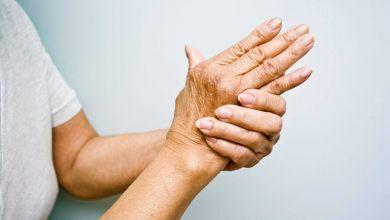 Photo of درمان آرتریت و توقف تمام دردهای مفصلی با طب سوزنی