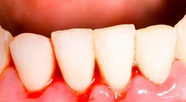 رفع خونریزی لثه به علت بیماری و درمان قطعی آن با لیزر بافت نرم دندانپزشکی