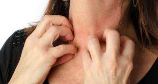 طب سوزنی برای درمان کهیر یا بیماری اورتیکاریای آلرژیک