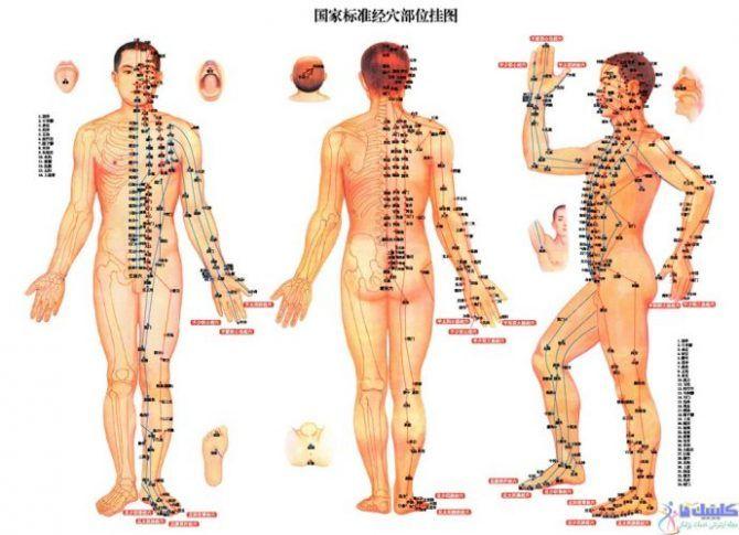 طب سوزنی عضلانی بدن برای تقویت و پرورش عضلات ورزشکاران