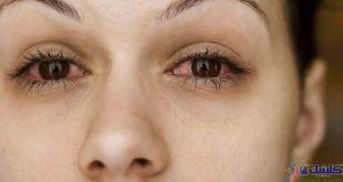 آیا درمان بیماری سندرم شوگرن با طب سوزنی تاثیر دارد؟