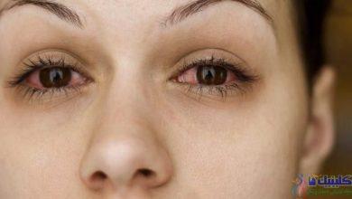 Photo of آیا درمان بیماری سندرم شوگرن با طب سوزنی تاثیر دارد؟