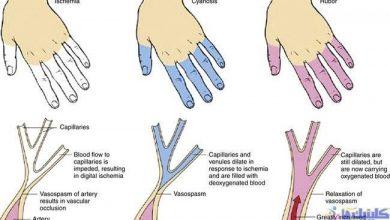 Photo of طب سوزنی برای درمان گردش نامناسب خون دست و پا یا پدیده رینود