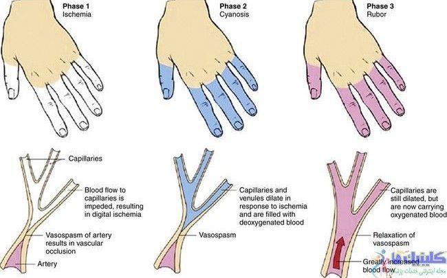 تصویر طب سوزنی برای درمان گردش نامناسب خون دست و پا یا پدیده رینود