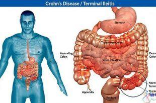 درمان بیماری کرون و رفع علائم آن با طب سوزنی و گیاهان دارویی چینی