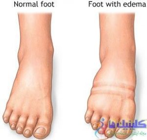 درمان ورم پا با طب سوزنی